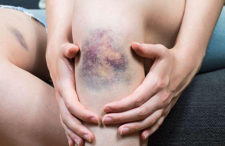 curar ulceras en las piernas actipatch