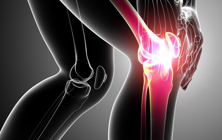 como-aliviar-dolor-rodilla-por-artrosis